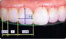 相対的歯冠長